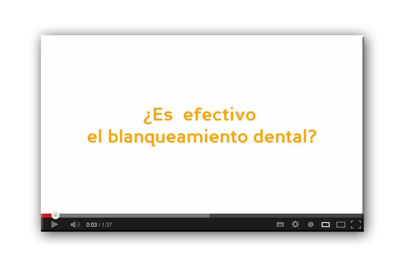 Vídeo-Consejo: ¿Es efectivo el blanqueamiento dental?